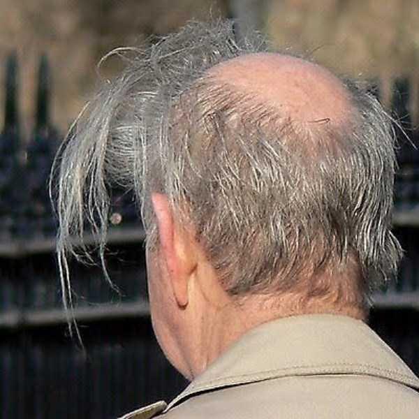 bald-men-15