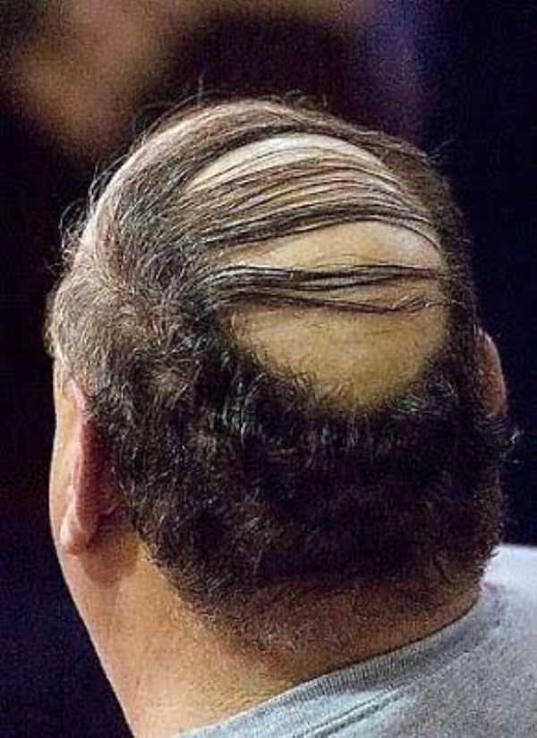 bald-men-16