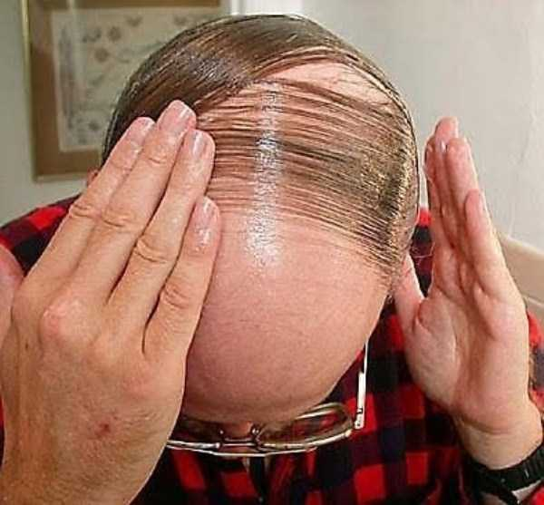 bald-men-17