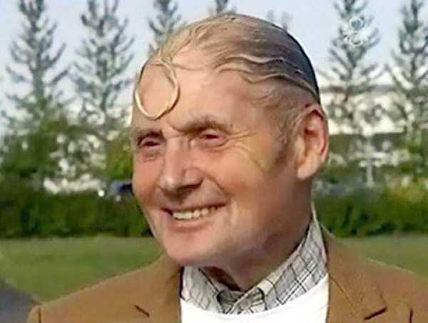 bald-men-22