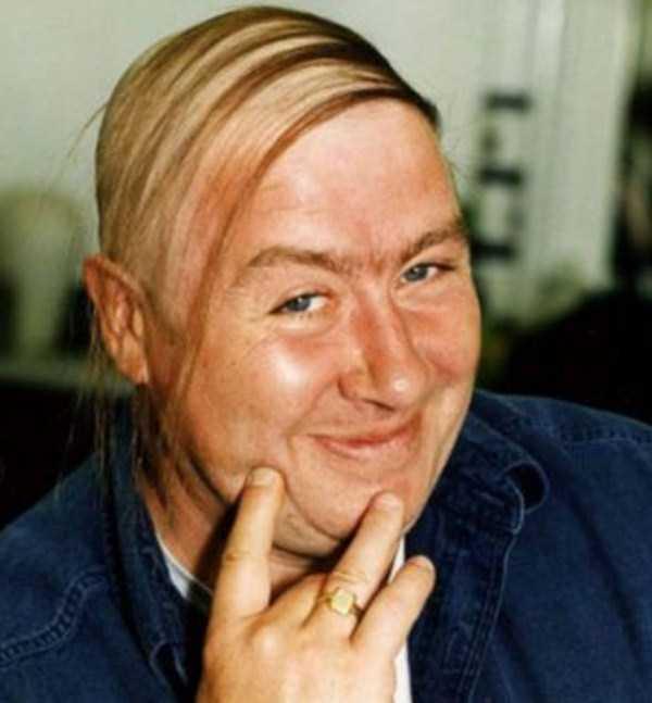 bald-men-25